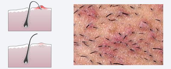 Įaugę plaukeliai. Ar galima to išvengti?