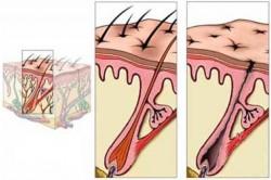 Plaukai anageno ir telogeno fazėse