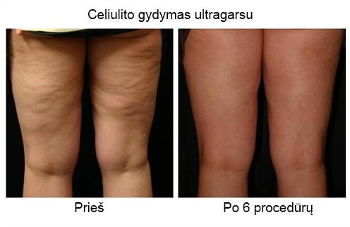 Ultragarsinis metodas kovoje prieš celiulitą