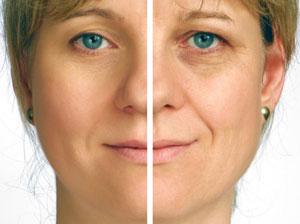 Fotoatjauninimas spindinčiai ir skaisčiai veido odai